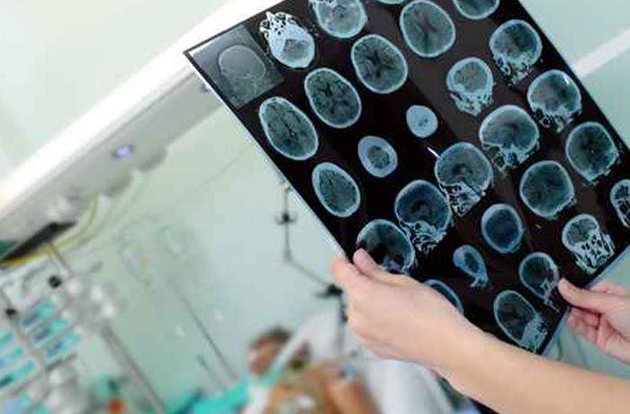 Centro de rehabilitación daño cerebral adquirido Ictus Madrid