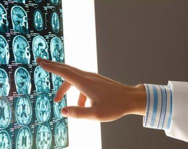 Traumatismo cráneo encefálico